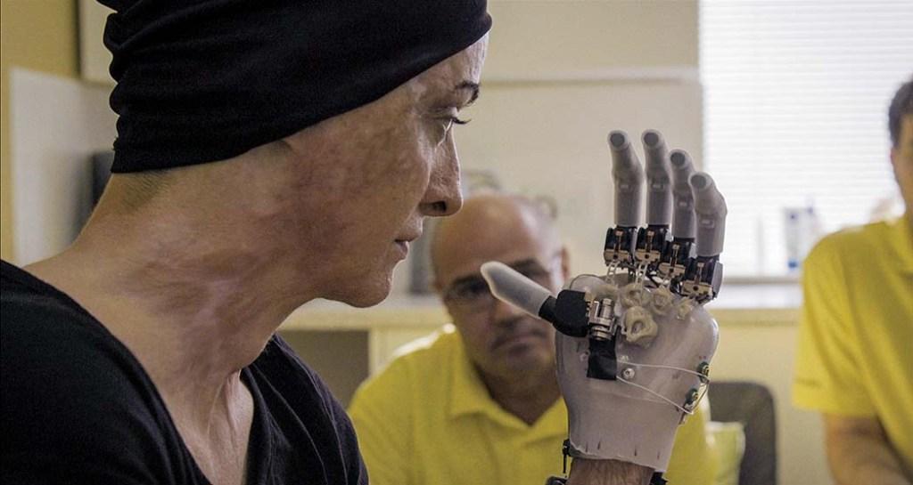 Teddy Ursuliano a fost unul dintre supraviețuitorii incendiului colectiv și a suferit arsuri grave pe tot capul și corpul.  Acum o victimă activistă și o figură proeminentă în colectiv, ea este văzută aici echipată cu o mână protetică.
